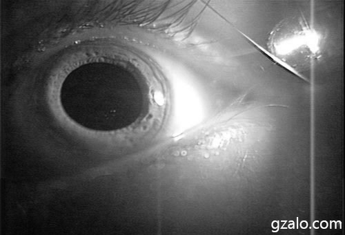 Eye under IR light